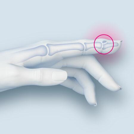 Gelenkbruch des körperfernen Fingerknochens mit Teilausrenkung